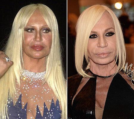 d06af3ad0 A estilista italiana Donatella Versace, 58 anos, é outra famosa que comete  excessos para manter a aparência. As mudanças drásticas no rosto são  atribuídas a ...
