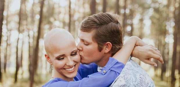 A mulher que tirou a peruca e decidiu assumir alopecia ...